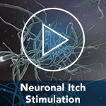 Neuronal Itch Stimulation